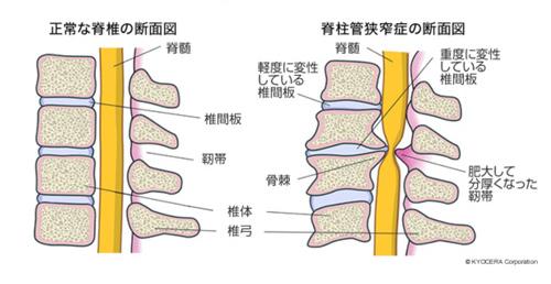 腰痛がなくても背骨や骨盤の異常はある