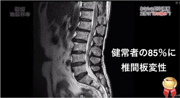 健常者の85%に椎間板変性